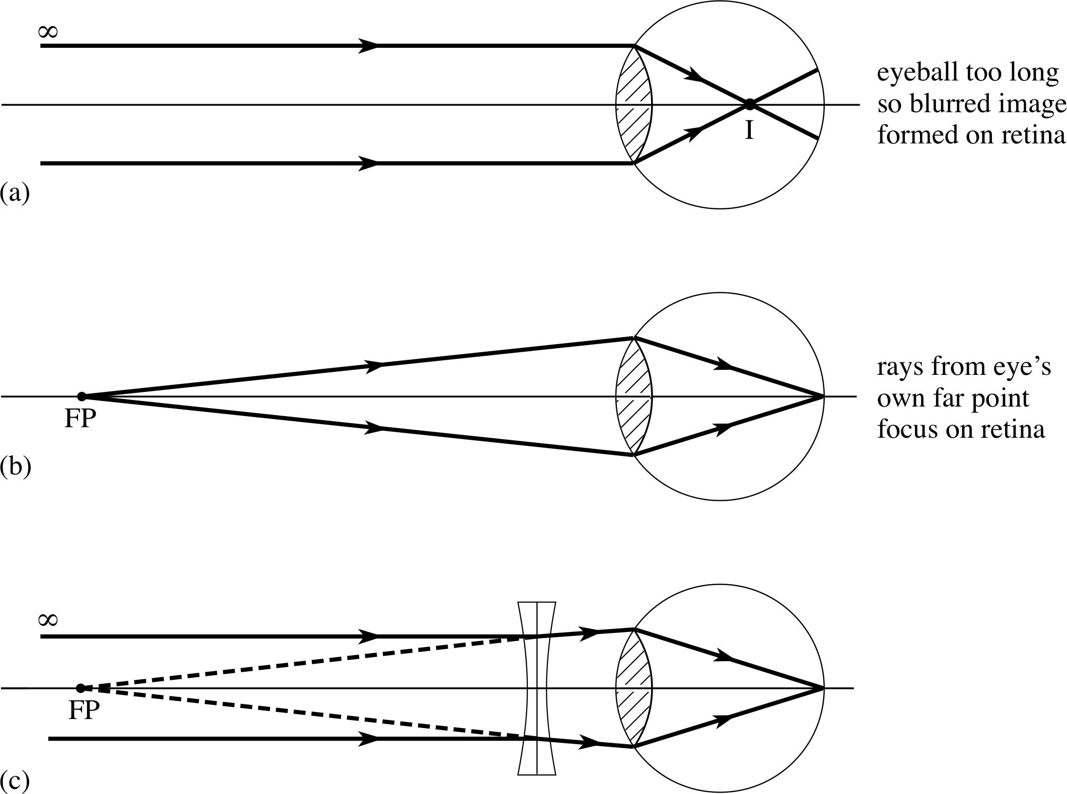 Pplato Flap Phys 64 Optical Instruments Fiber Optics Diagram Its Eprimer Module 9 Figure